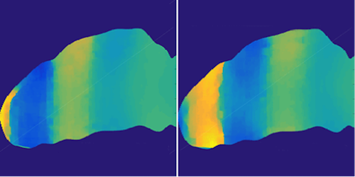 Synopsis: Brain Tissue Amplifies Waves
